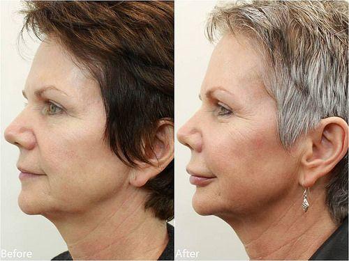 Липофилинг фото до и после