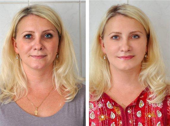 Крем от морщин фото до и после