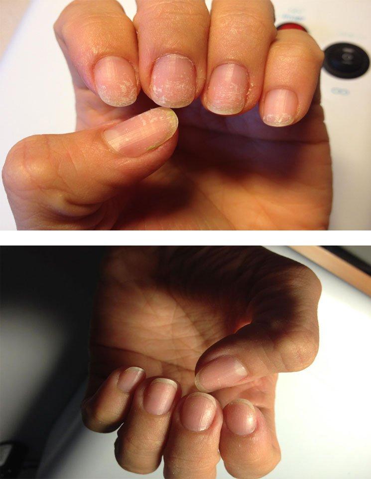 Результат применения Fito Nails System