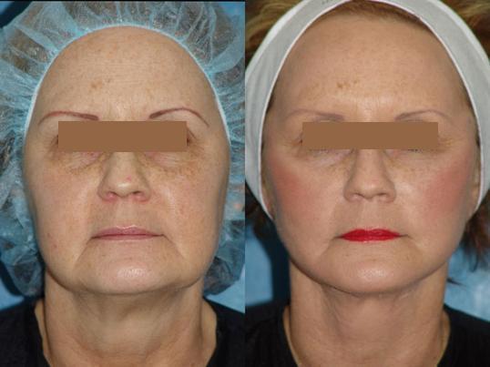 Липосакция щек операция до и после