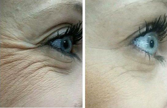 До и После применения сыворотки
