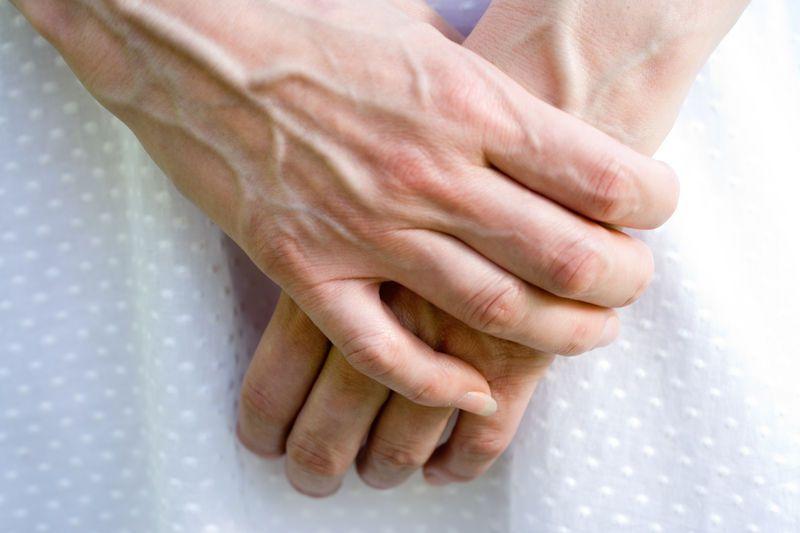 Причины варикоза рук
